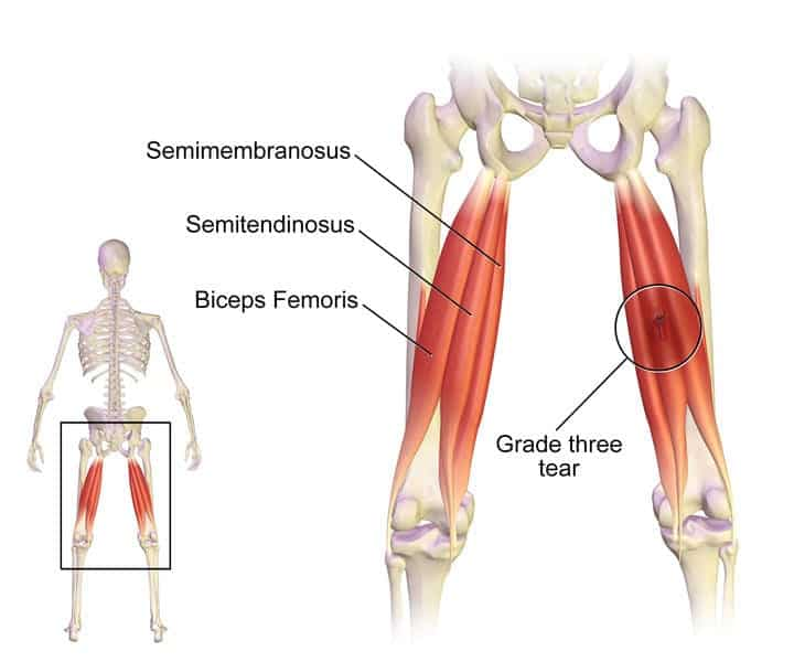 supplements for pulled hamstring muscle injury